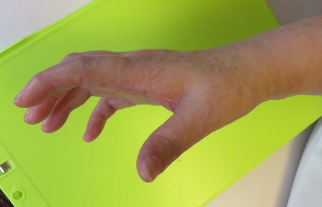 指伸展(治療後)