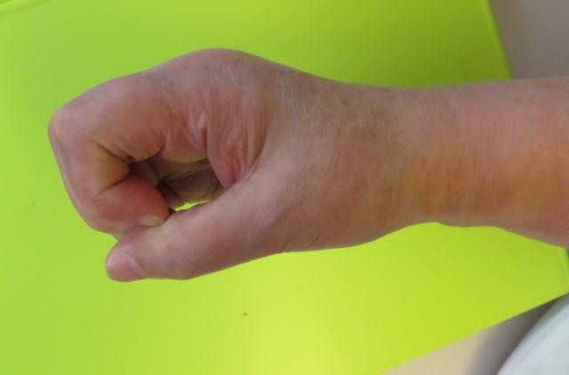 指の屈曲(治療後)