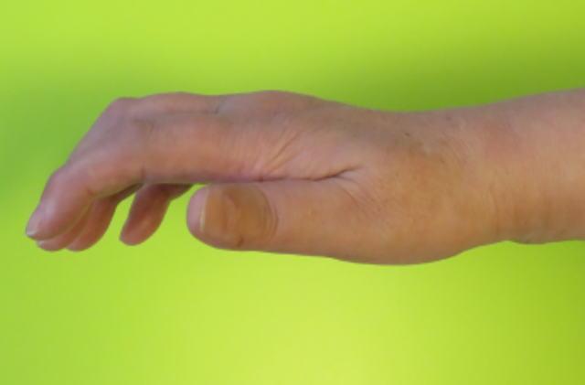 指伸展(治療前)